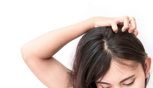 フケだらけのボロボロ頭皮を改善する方法